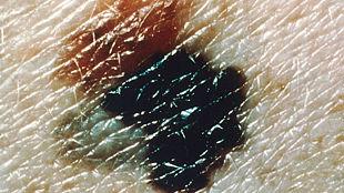 Melanoma Lesion