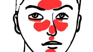 Rosacea Graphic