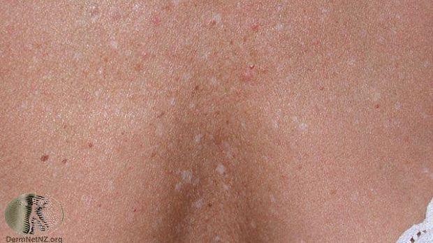 Guttate Hypomelanosis