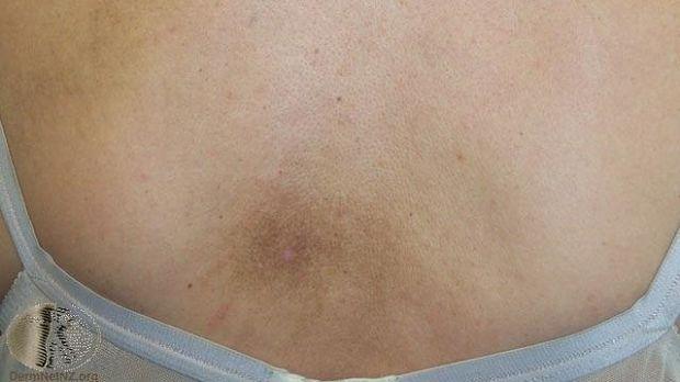 Notalgia Paresthetica