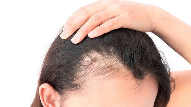 non scarring hair loss
